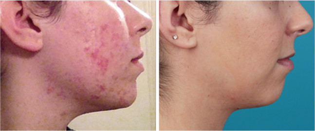before-after-acne-photo