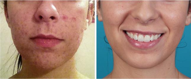 Ava MD Acne Treatment
