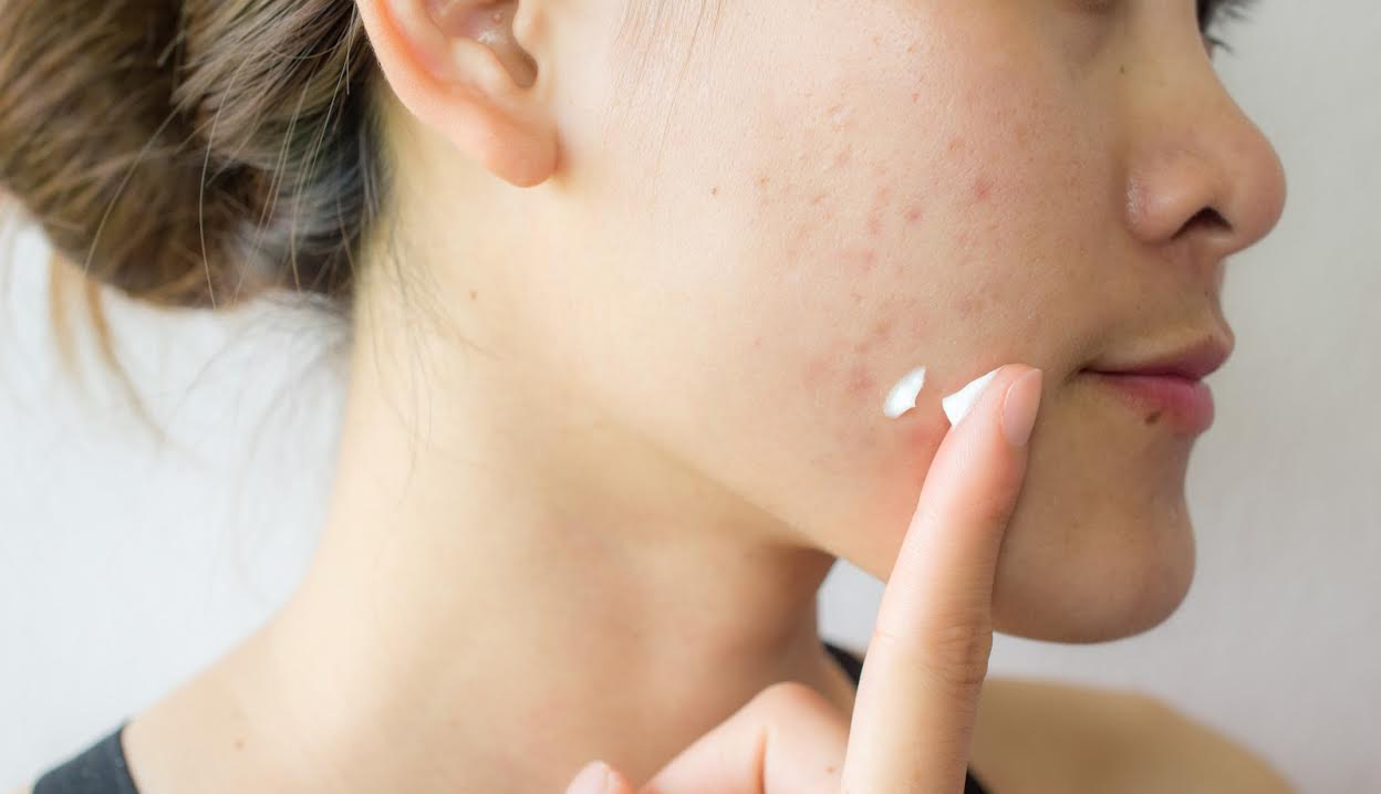Dr. Ava's Tips for Treating a Pimple 2