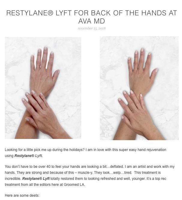 back of hands restylane ava md